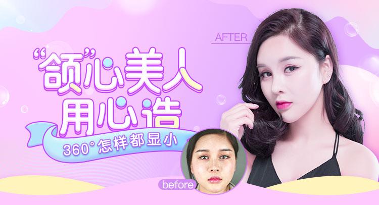 上海首尔丽格下颌角+颊脂垫+面部提升