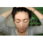 龚小姐天生眉毛、睫毛稀少,植眉,种睫毛后效果图对比