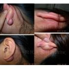 耳垂瘢痕手术综合治疗
