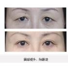 眉部提升、除眼袋