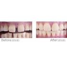 瓷贴面修补牙齿缝隙