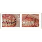 36岁侧牙单颗种植案例