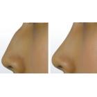 驼峰鼻矫正术后效果对比