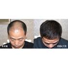 李先生4级脱发,通过植发以后的对比图