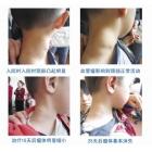 颈部海绵状淋巴管瘤案例