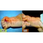 李宝宝 1岁半 混合型血管瘤