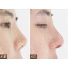 短鼻畸形(朝天鼻)整形手术前后对比