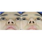 鼻头圆钝肥大,鼻孔变形矫正