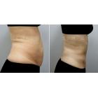 腰腹部吸脂 胃腹腰胯环吸照片