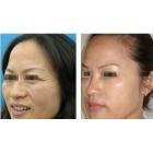 面部填充改善鱼尾纹 法令纹年轻紧致皮肤