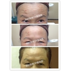 肉毒毒素注射抬头纹、眉提升、外眼角提升