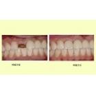 种植牙修补牙齿缺失
