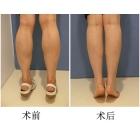BOTOX瘦小腿