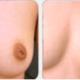 乳头缺失(无乳头)箭式法再造术