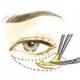 祛眼袋手术会导致眼眼睑外翻么?