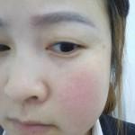 去面诊医生说我是黄褐斑,这么多年了,一直都是这个样子,买过擦脸的开过中药...