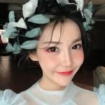 在悦美看到佛山梦露的案例还不错就来做了韩式双眼皮了,我从小就羡慕别人大大...