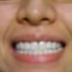 手术体验 牙齿美白全瓷贴面,我做了特好,介绍给大家,比烤瓷牙科学,还不用磨牙.去两次就搞定了,保用20年...